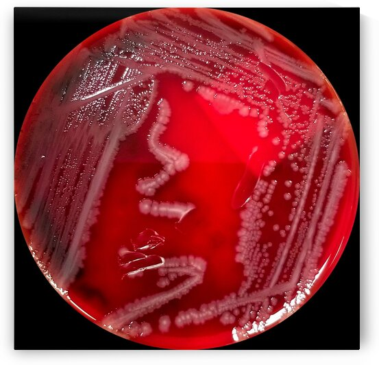 Salmonella Bacteria Growing on Blood Agar by Creative Endeavors - Steven Oscherwitz