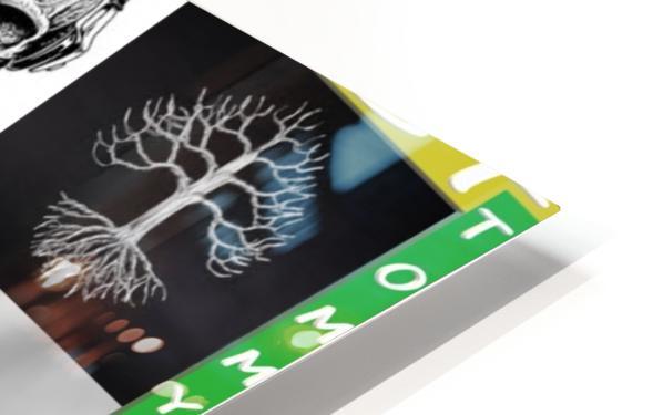 GREEN BUSH CANNABIS. LIFE HD Sublimation Metal print
